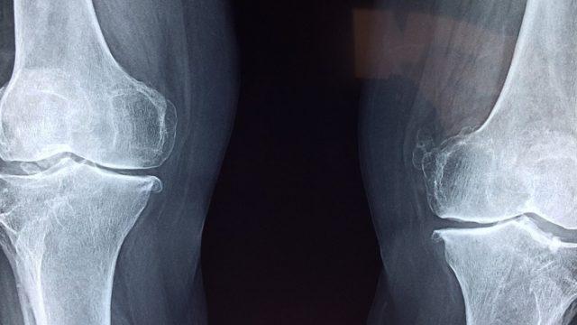 El riesgo de fracturas osteoporóticas es mayor en los pacientes con diabetes mellitus tipo 2